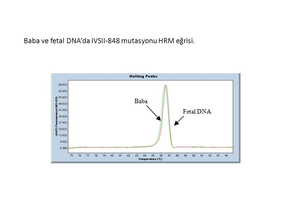 Baba ve fetal DNA'da IVSII-848 mutasyonu HRM eğrisi.