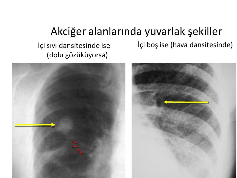 / 4014 Akciğer alanlarında yuvarlak şekiller İçi sıvı dansitesinde ise (dolu gözüküyorsa) Pulmoner vasküler gölgeler Kitle lezyonları İçi boş ise (hava dansitesinde) Bronşlar Kaviteli lezyonlar