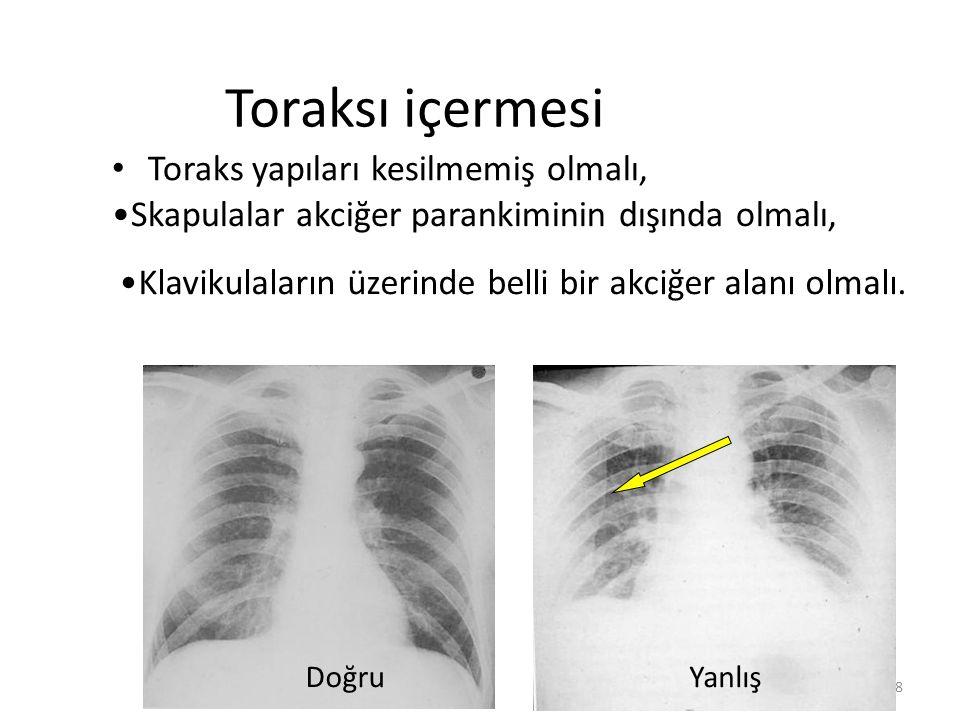 / 408 Toraksı içermesi Toraks yapıları kesilmemiş olmalı, DoğruYanlış Skapulalar akciğer parankiminin dışında olmalı, Klavikulaların üzerinde belli bir akciğer alanı olmalı.