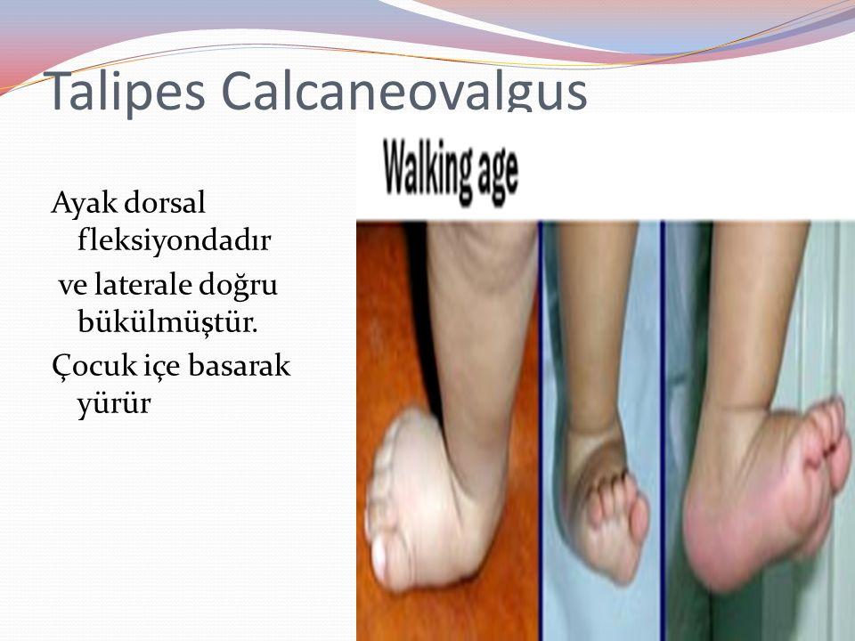 Talipes Calcaneovalgus Ayak dorsal fleksiyondadır ve laterale doğru bükülmüştür.