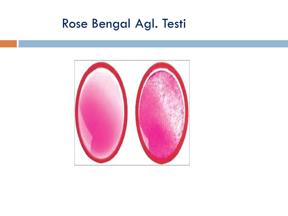 Rose Bengal Agl. Testi