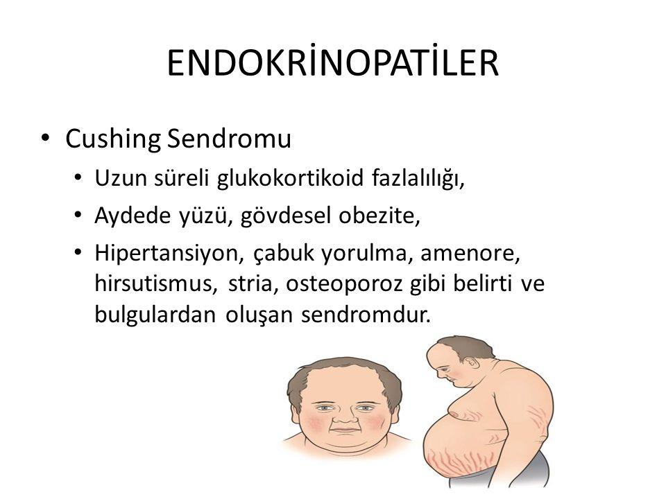 ENDOKRİNOPATİLER Cushing Sendromu Uzun süreli glukokortikoid fazlalılığı, Aydede yüzü, gövdesel obezite, Hipertansiyon, çabuk yorulma, amenore, hirsutismus, stria, osteoporoz gibi belirti ve bulgulardan oluşan sendromdur.