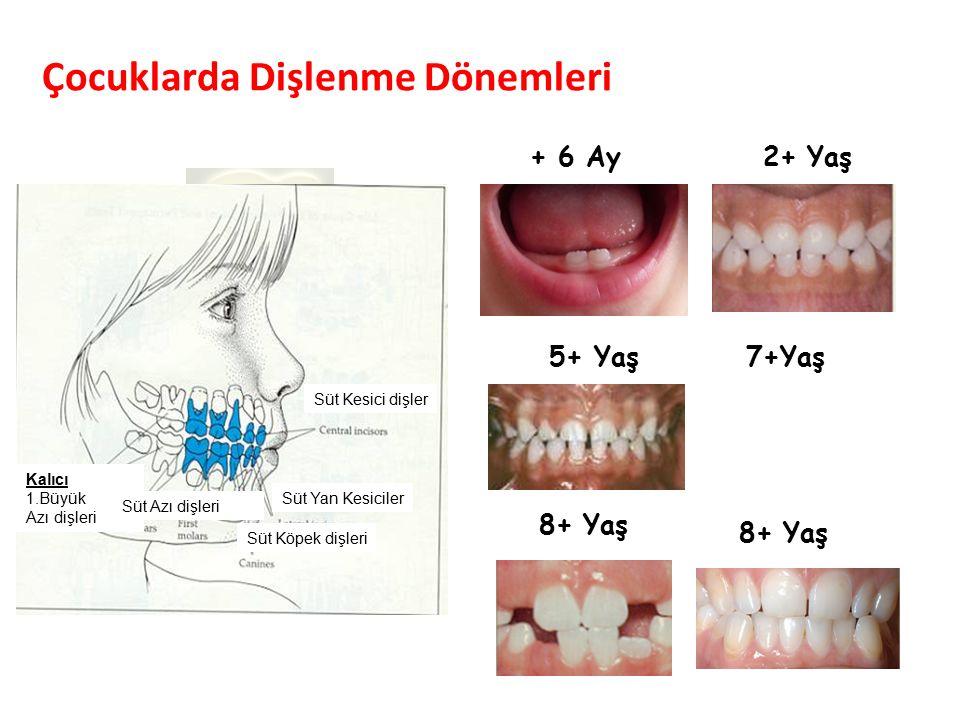 Çocuklarda Dişlenme Dönemleri Parlak Gülüşler Parlak Gelecekeler + 6 Ay2+ Yaş 7+Yaş 8+ Yaş Süt Kesici dişler Süt Köpek dişleri Kalıcı 1.Büyük Azı dişleri Süt Azı dişleri Süt Yan Kesiciler 5+ Yaş 8+ Yaş