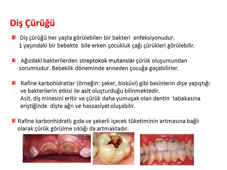 Diş Çürüğü Diş çürüğü her yaşta görülebilen bir bakteri enfeksiyonudur.