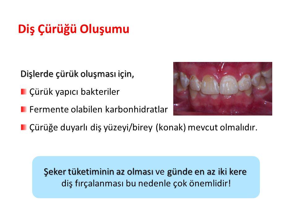 Diş Çürüğü Oluşumu Dişlerde çürük oluşması için, Çürük yapıcı bakteriler Fermente olabilen karbonhidratlar Çürüğe duyarlı diş yüzeyi/birey (konak) mevcut olmalıdır.