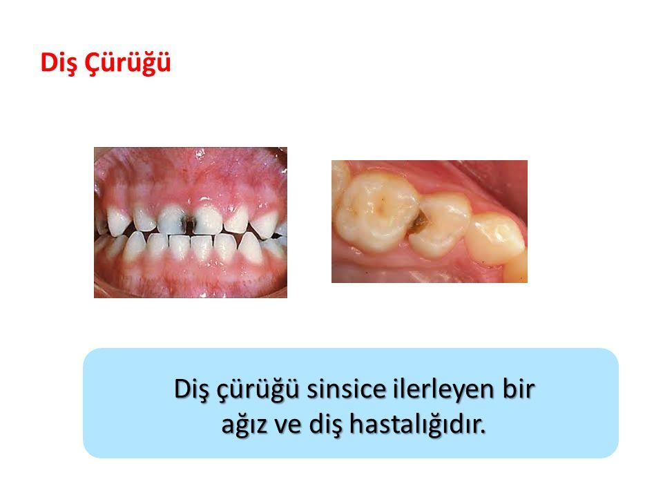 Diş çürüğü sinsice ilerleyen bir ağız ve diş hastalığıdır. Diş Çürüğü