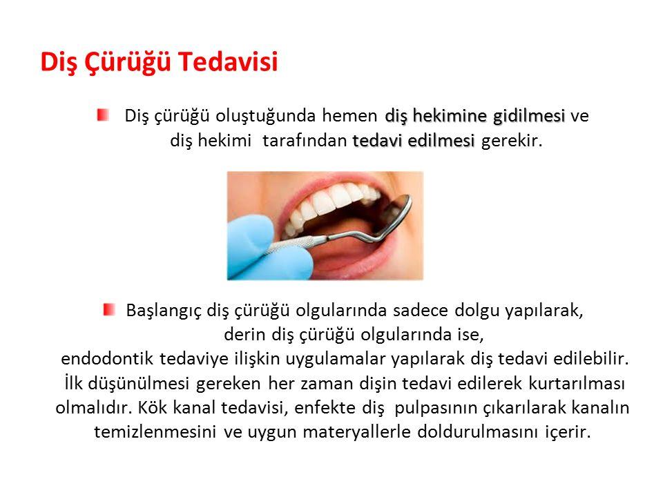Diş Çürüğü Tedavisi diş hekimine gidilmesi Diş çürüğü oluştuğunda hemen diş hekimine gidilmesi ve tedavi edilmesi diş hekimi tarafından tedavi edilmesi gerekir.
