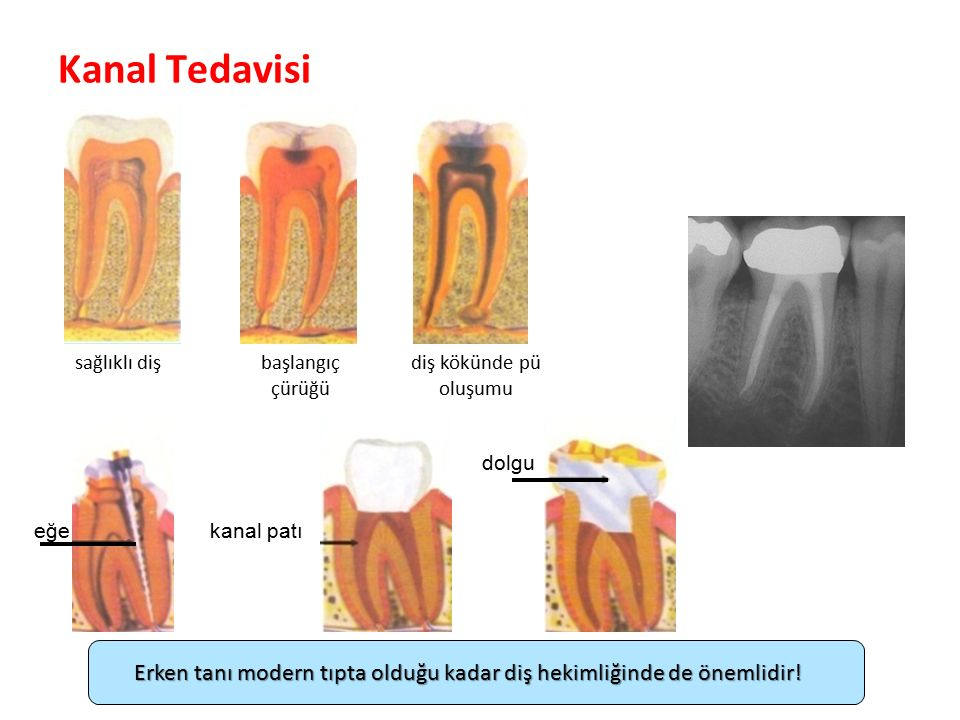 Kanal Tedavisi Parlak Gülüşler Parlak Gelecekeler sağlıklı dişbaşlangıç çürüğü diş kökünde pü oluşumu eğekanal patı dolgu Erken tanı modern tıpta olduğu kadar diş hekimliğinde de önemlidir!