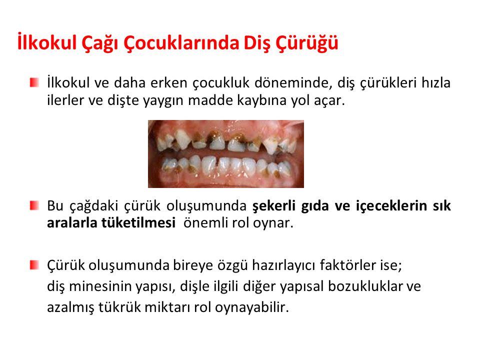 İlkokul Çağı Çocuklarında Diş Çürüğü İlkokul ve daha erken çocukluk döneminde, diş çürükleri hızla ilerler ve dişte yaygın madde kaybına yol açar. Bu