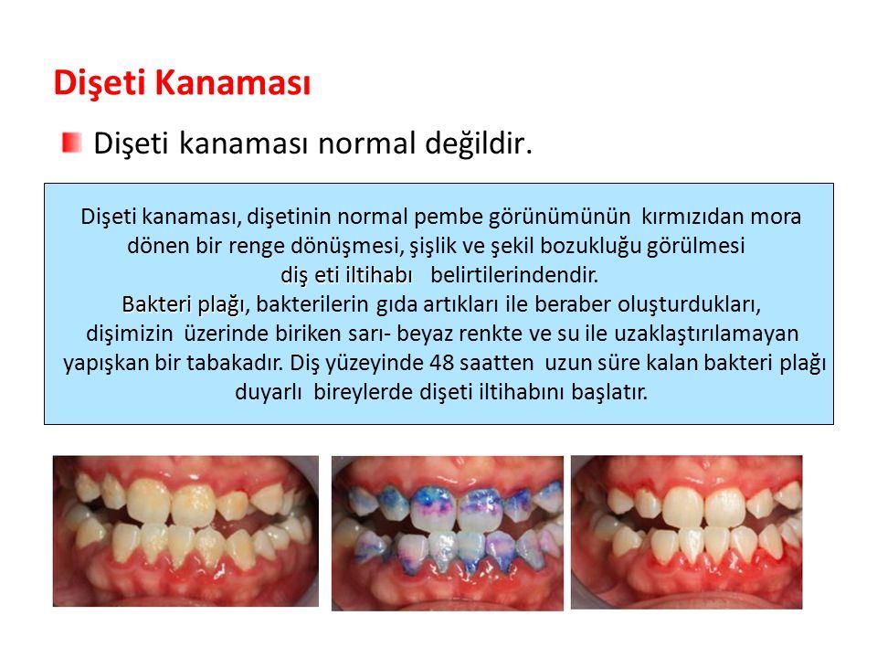 Dişeti Kanaması Dişeti kanaması normal değildir. Parlak Gülüşler Parlak Gelecekeler Dişeti kanaması, dişetinin normal pembe görünümünün kırmızıdan mor
