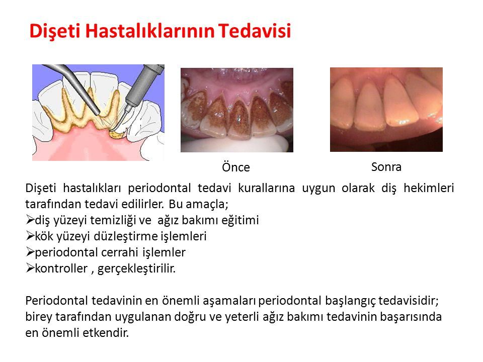 Dişeti Hastalıklarının Tedavisi Parlak Gülüşler Parlak Gelecekeler ÖnceSonra Dişeti hastalıkları periodontal tedavi kurallarına uygun olarak diş hekimleri tarafından tedavi edilirler.