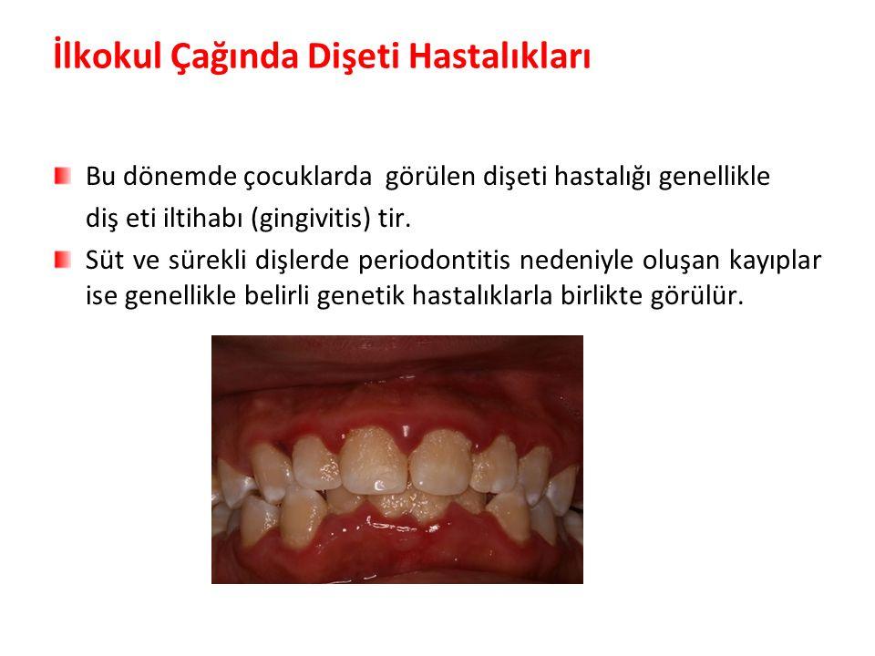 İlkokul Çağında Dişeti Hastalıkları Bu dönemde çocuklarda görülen dişeti hastalığı genellikle diş eti iltihabı (gingivitis) tir.