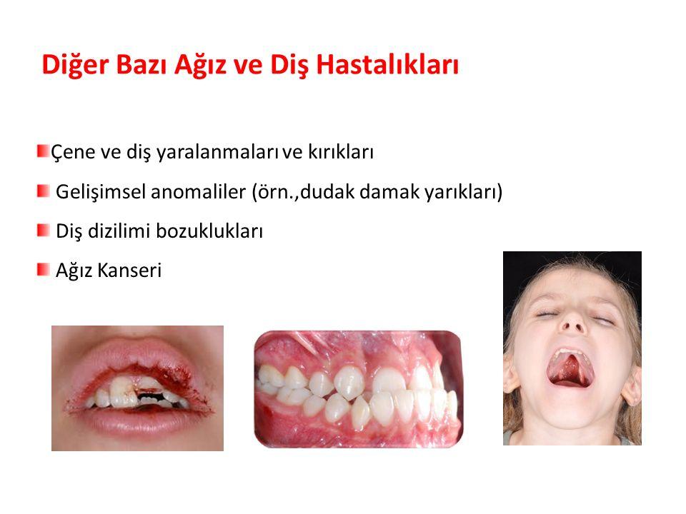 Diğer Bazı Ağız ve Diş Hastalıkları Parlak Gülüşler Parlak Gelecekeler Çene ve diş yaralanmaları ve kırıkları Gelişimsel anomaliler (örn.,dudak damak yarıkları) Diş dizilimi bozuklukları Ağız Kanseri