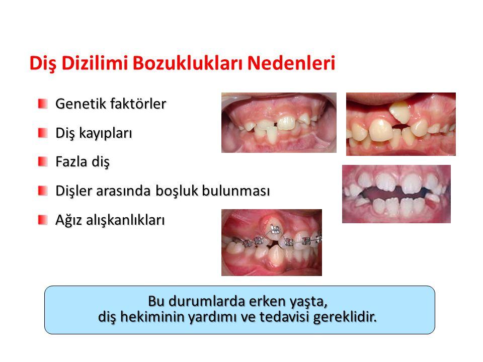 Bu durumlarda erken yaşta, diş hekiminin yardımı ve tedavisi gereklidir. Diş Dizilimi Bozuklukları Nedenleri Genetik faktörler Genetik faktörler Diş k