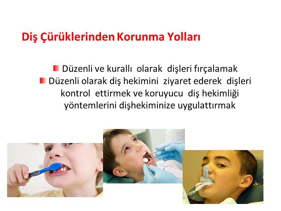 Diş Çürüklerinden Korunma Yolları Düzenli ve kurallı olarak dişleri fırçalamak Düzenli olarak diş hekimini ziyaret ederek dişleri kontrol ettirmek ve