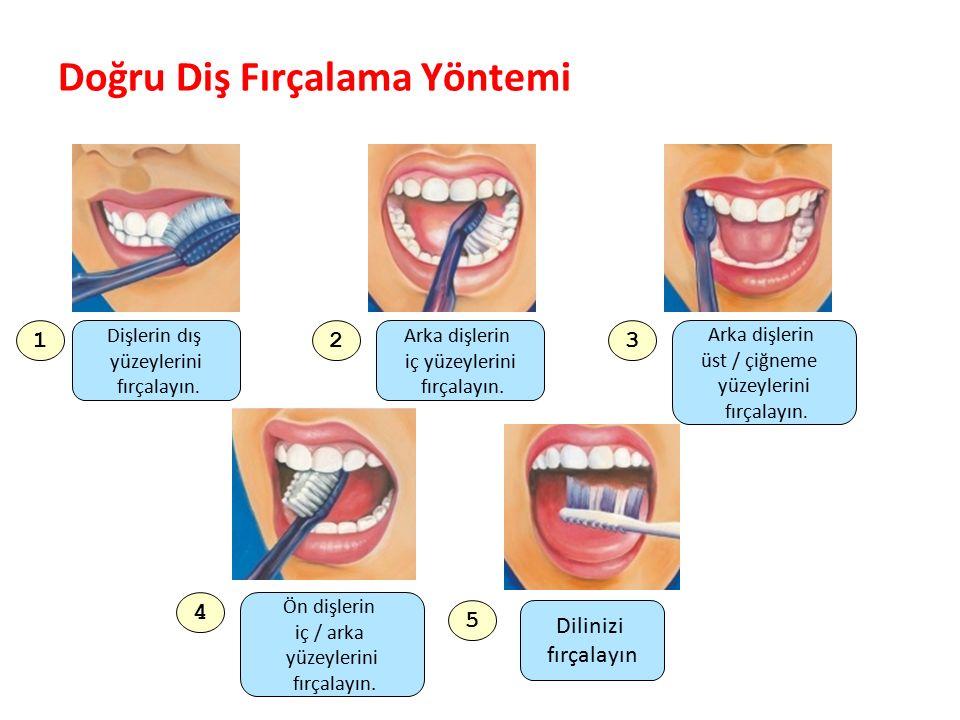Doğru Diş Fırçalama Yöntemi Parlak Gülüşler Parlak Gelecekeler 1 Dişlerin dış yüzeylerini fırçalayın. 2 Arka dişlerin iç yüzeylerini fırçalayın. 3 Ark