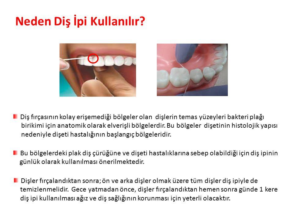 Parlak Gülüşler Parlak Gelecekeler Neden Diş İpi Kullanılır.