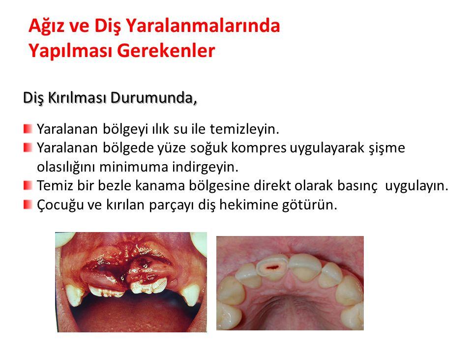 Ağız ve Diş Yaralanmalarında Yapılması Gerekenler Diş Kırılması Durumunda, Yaralanan bölgeyi ılık su ile temizleyin. Yaralanan bölgede yüze soğuk komp