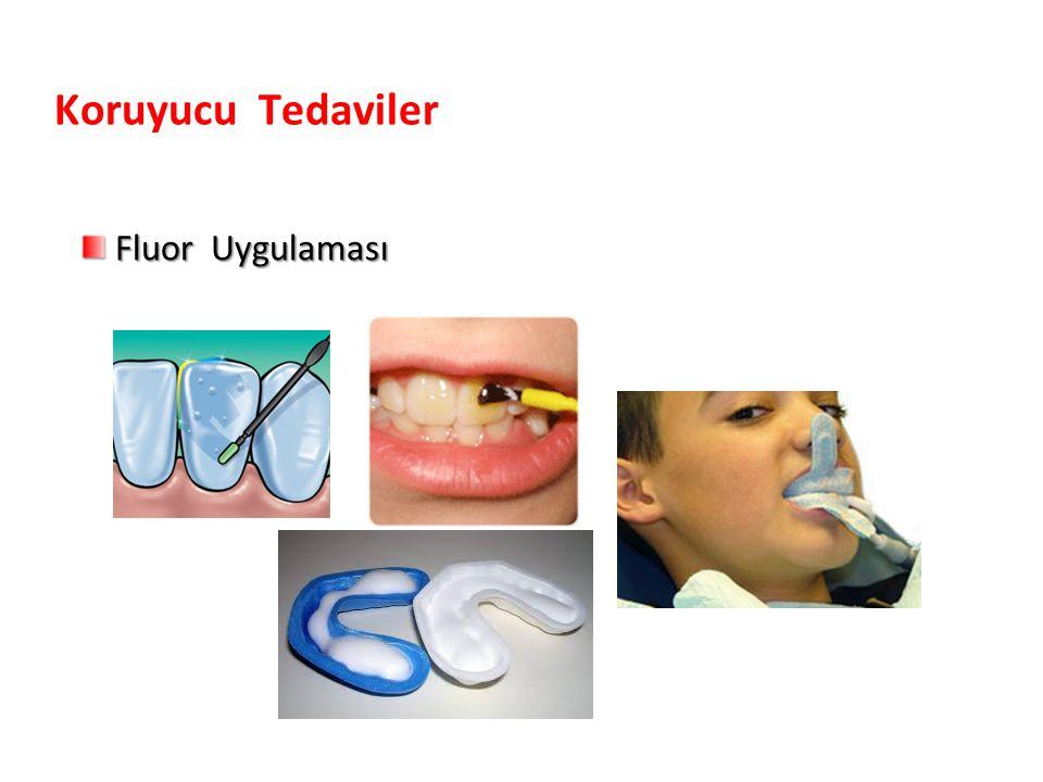 Fluor Uygulaması Fluor Uygulaması Koruyucu Tedaviler