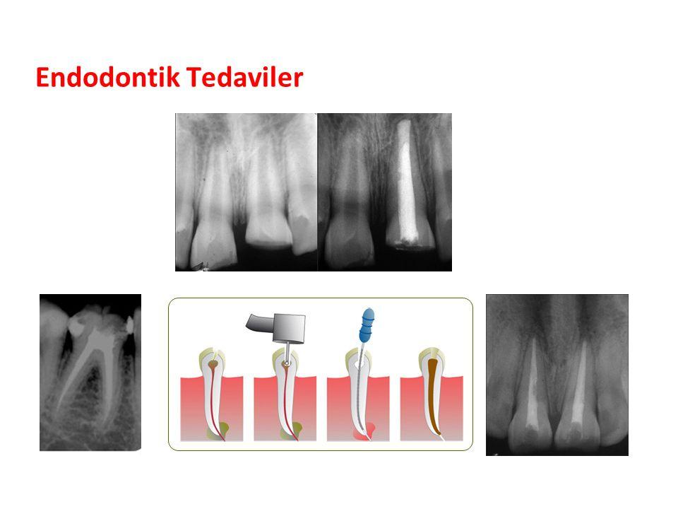 Endodontik Tedaviler Parlak Gülüşler Parlak Gelecekeler