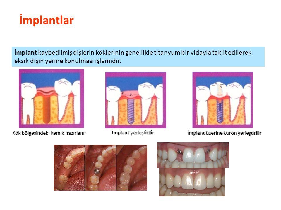 İmplantlar Parlak Gülüşler Parlak Gelecekeler İmplant İmplant kaybedilmiş dişlerin köklerinin genellikle titanyum bir vidayla taklit edilerek eksik dişin yerine konulması işlemidir.