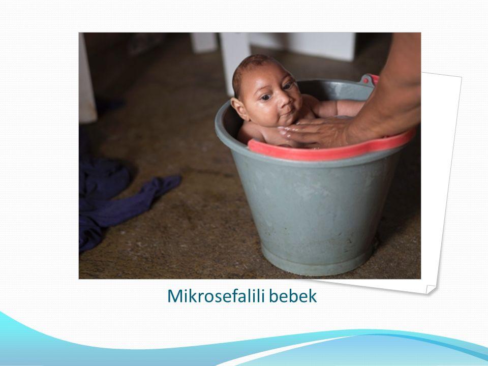 Mikrosefalili bebek
