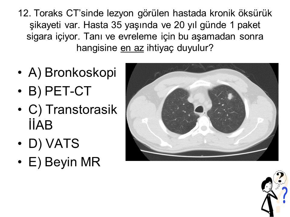 12.Toraks CT'sinde lezyon görülen hastada kronik öksürük şikayeti var.