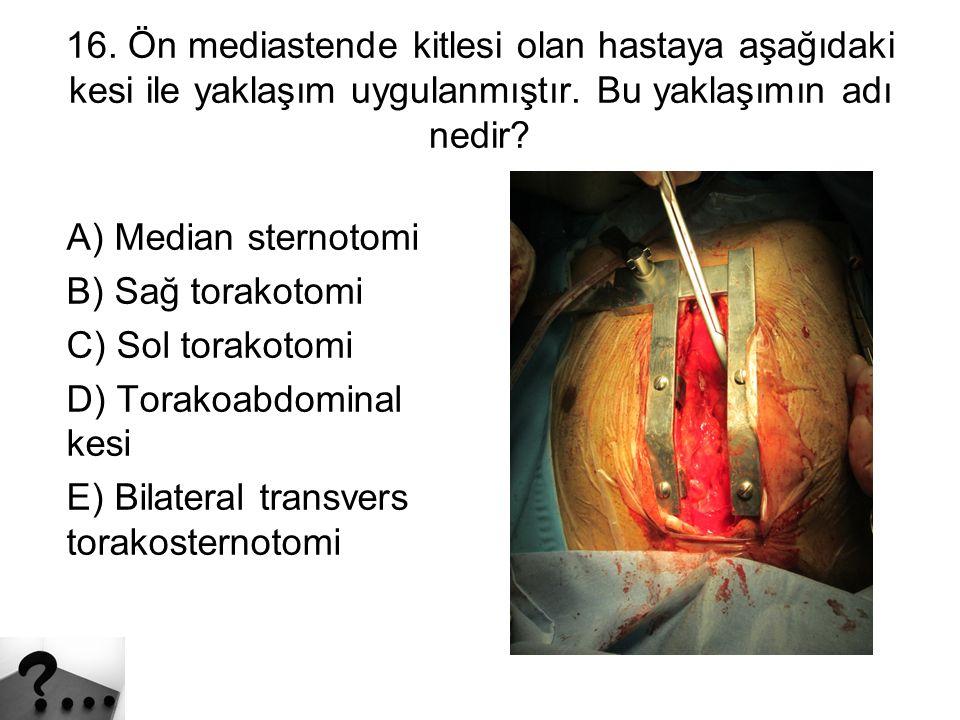 16.Ön mediastende kitlesi olan hastaya aşağıdaki kesi ile yaklaşım uygulanmıştır.