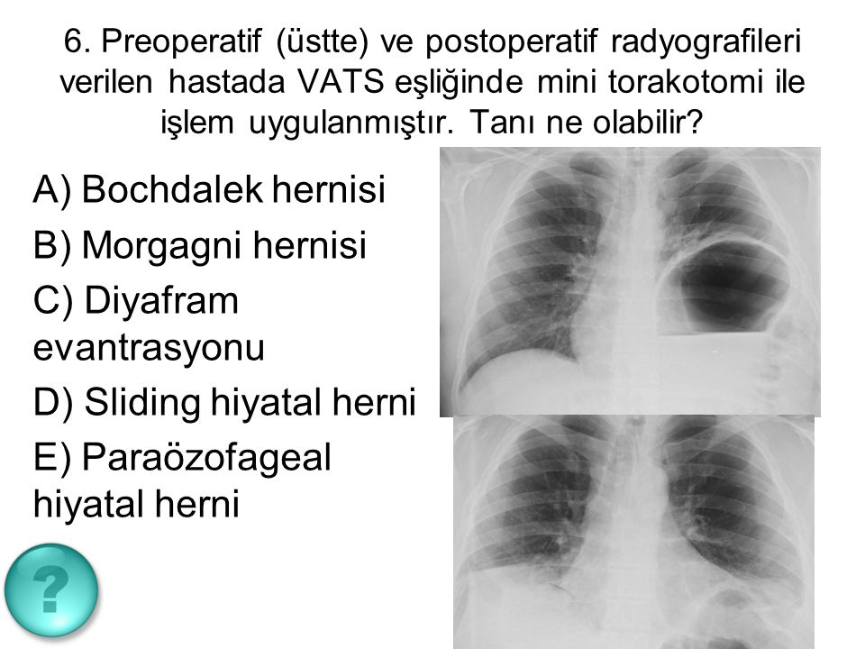 7.Lung cancer in which organs / structures metastases are very rare.