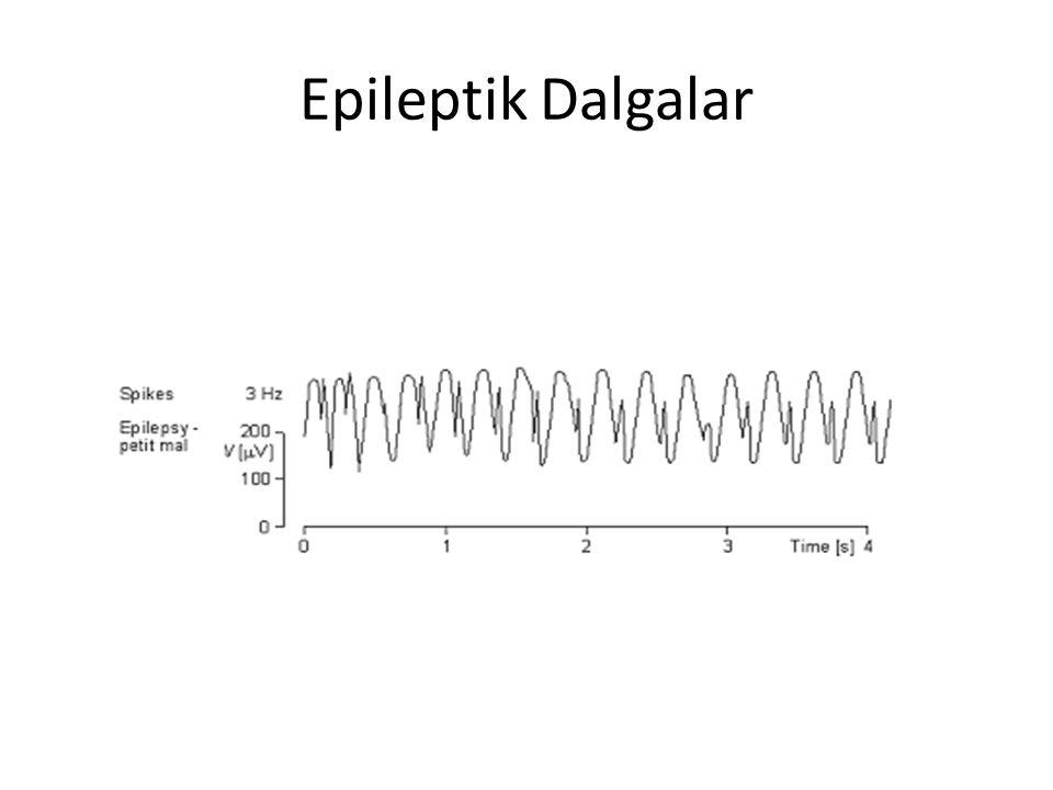 Epileptik Dalgalar