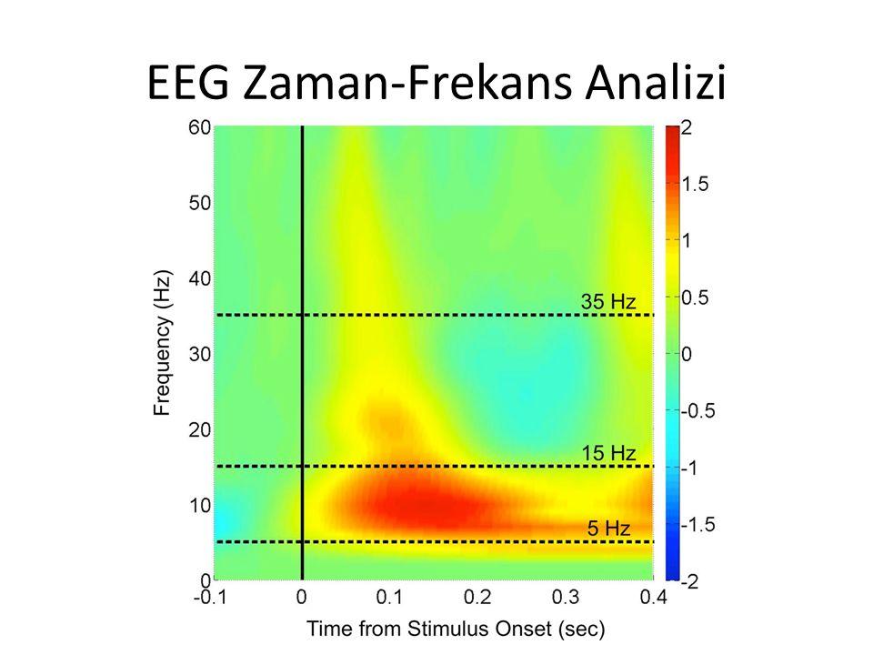 EEG Zaman-Frekans Analizi