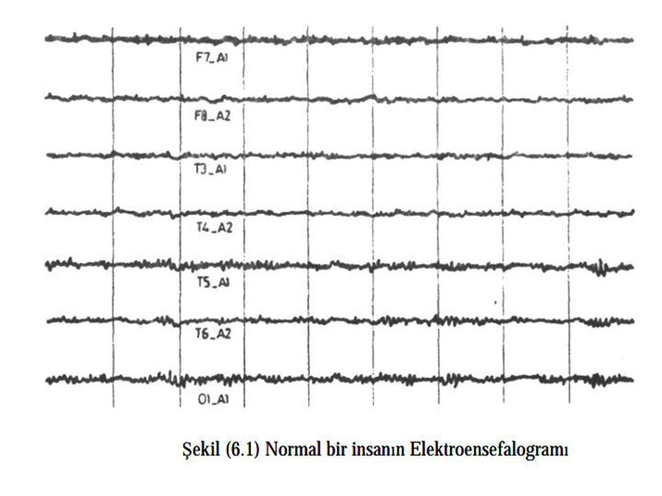Alfa Dalgaları 8-13 Hz arasındaki beyin dalgalandır.