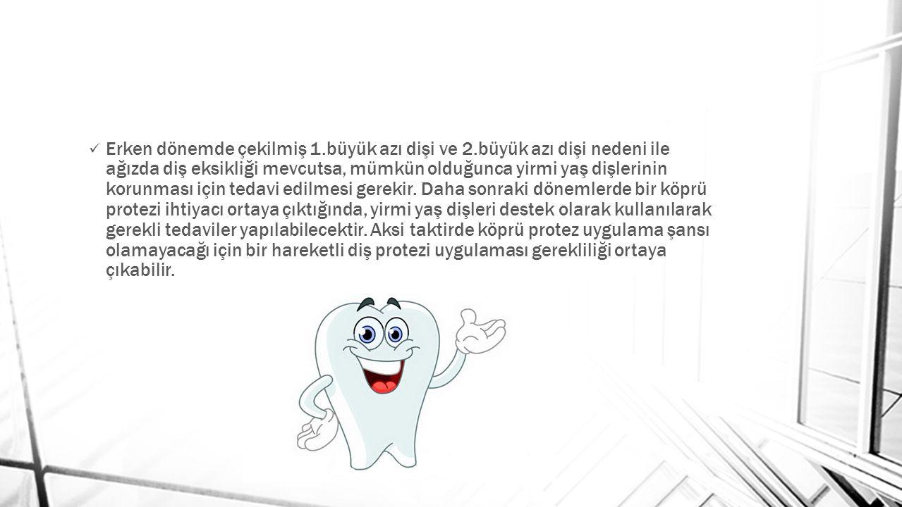 Erken dönemde çekilmiş 1.büyük azı dişi ve 2.büyük azı dişi nedeni ile ağızda diş eksikliği mevcutsa, mümkün olduğunca yirmi yaş dişlerinin korunması için tedavi edilmesi gerekir.