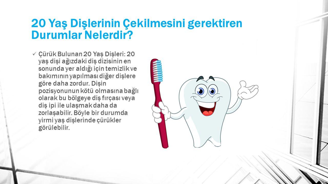 Çürük Bulunan 20 Yaş Dişleri: 20 yaş dişi ağızdaki diş dizisinin en sonunda yer aldığı için temizlik ve bakımının yapılması diğer dişlere göre daha zordur.