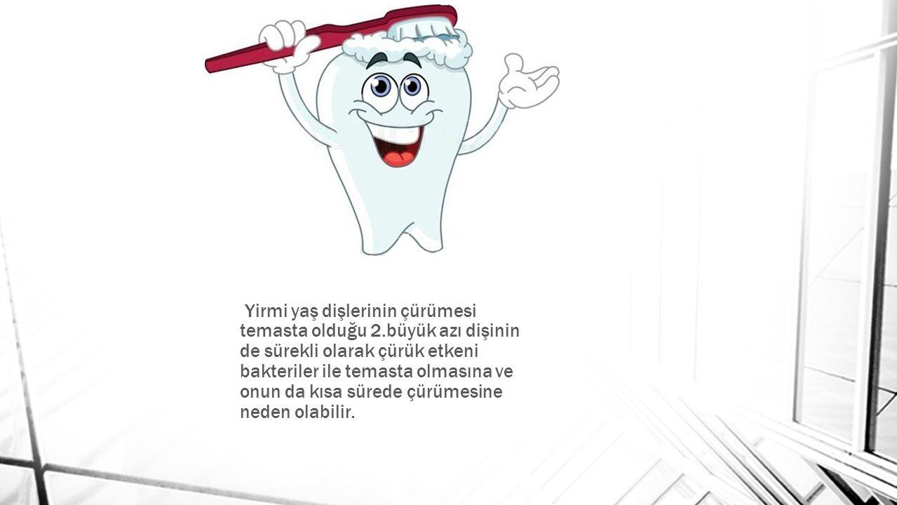 Yirmi yaş dişlerinin çürümesi temasta olduğu 2.büyük azı dişinin de sürekli olarak çürük etkeni bakteriler ile temasta olmasına ve onun da kısa sürede çürümesine neden olabilir.