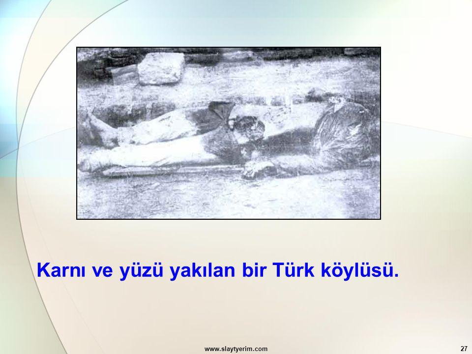 www.slaytyerim.com27 Karnı ve yüzü yakılan bir Türk köylüsü.