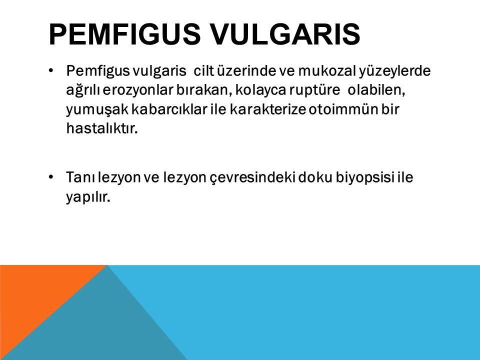 PEMFIGUS VULGARIS Pemfigus vulgaris cilt üzerinde ve mukozal yüzeylerde ağrılı erozyonlar bırakan, kolayca ruptüre olabilen, yumuşak kabarcıklar ile karakterize otoimmün bir hastalıktır.