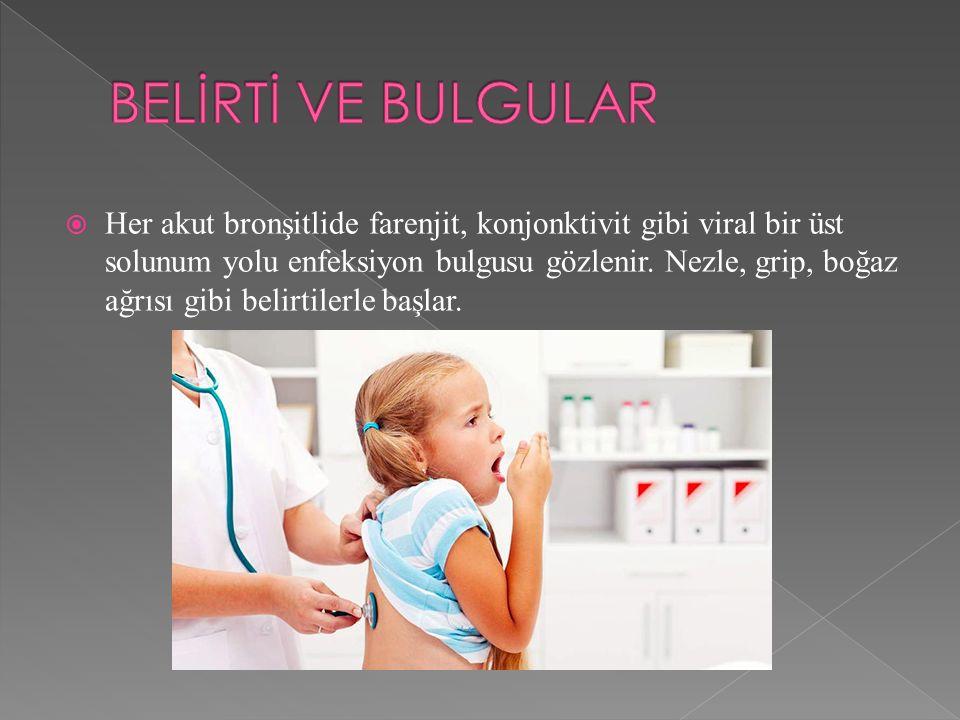  Her akut bronşitlide farenjit, konjonktivit gibi viral bir üst solunum yolu enfeksiyon bulgusu gözlenir.