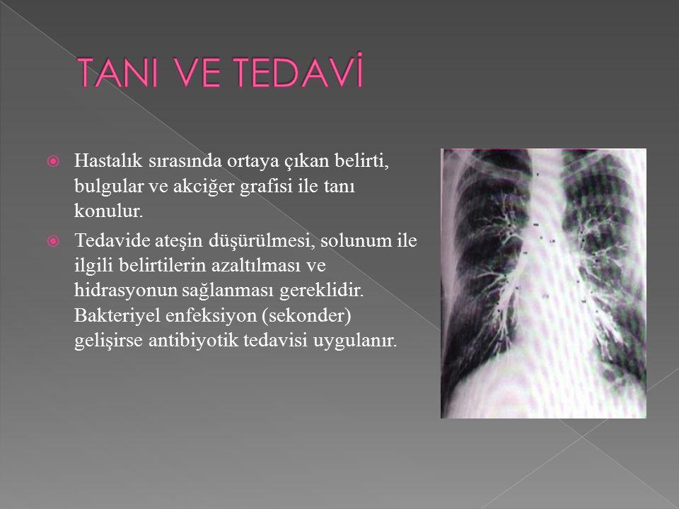  Hastalık sırasında ortaya çıkan belirti, bulgular ve akciğer grafisi ile tanı konulur.  Tedavide ateşin düşürülmesi, solunum ile ilgili belirtileri