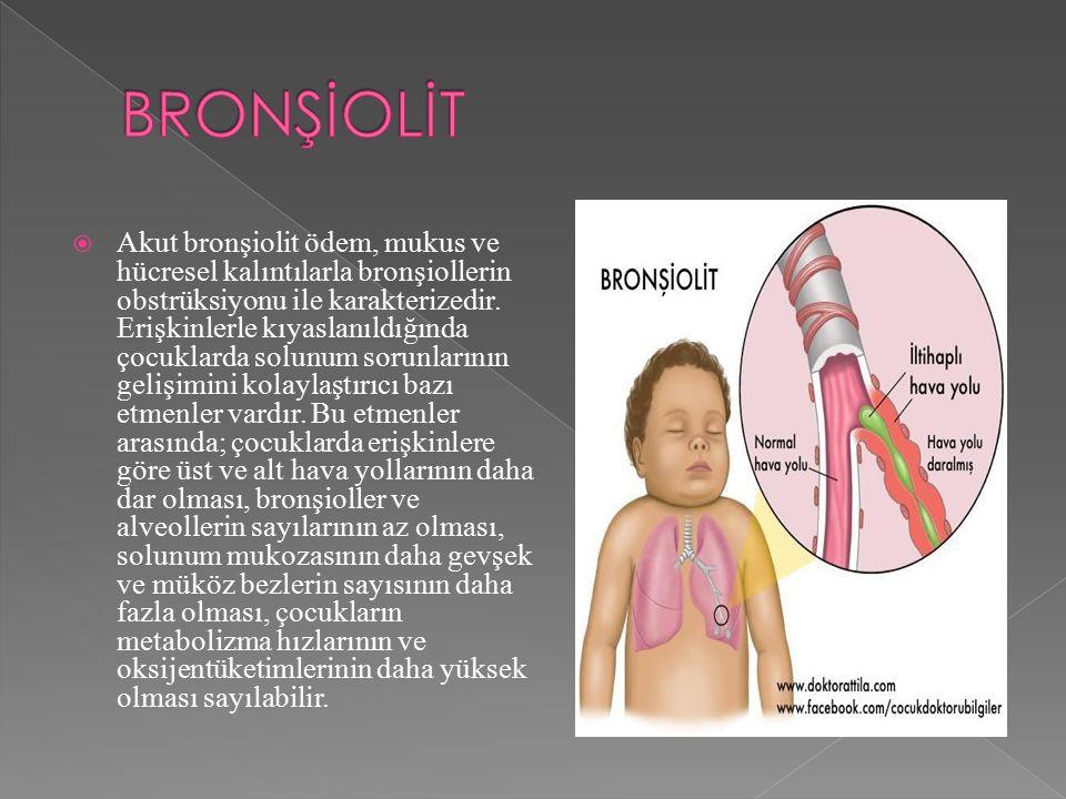  Akut bronşiolit ödem, mukus ve hücresel kalıntılarla bronşiollerin obstrüksiyonu ile karakterizedir.