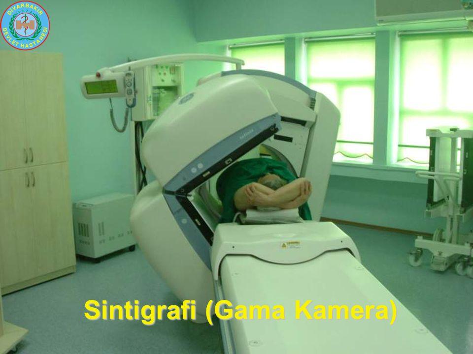 Sintigrafi (Gama Kamera)