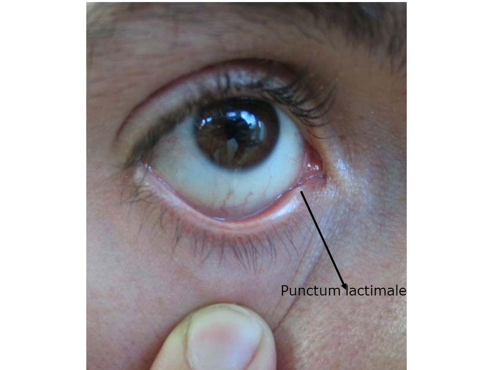 Punctum lactimale