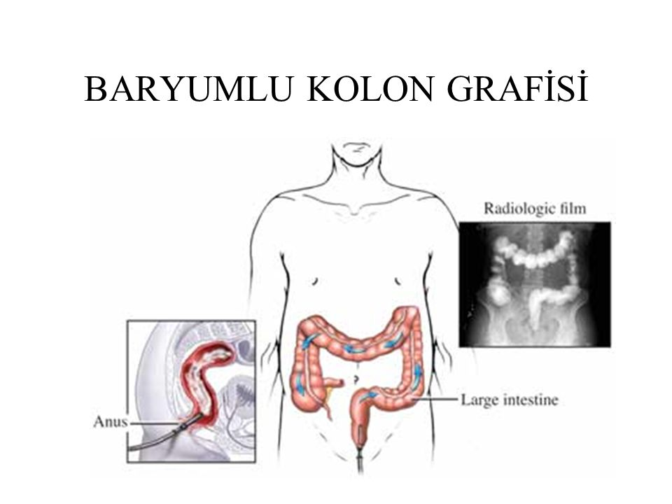 BARYUMLU KOLON GRAFİSİ