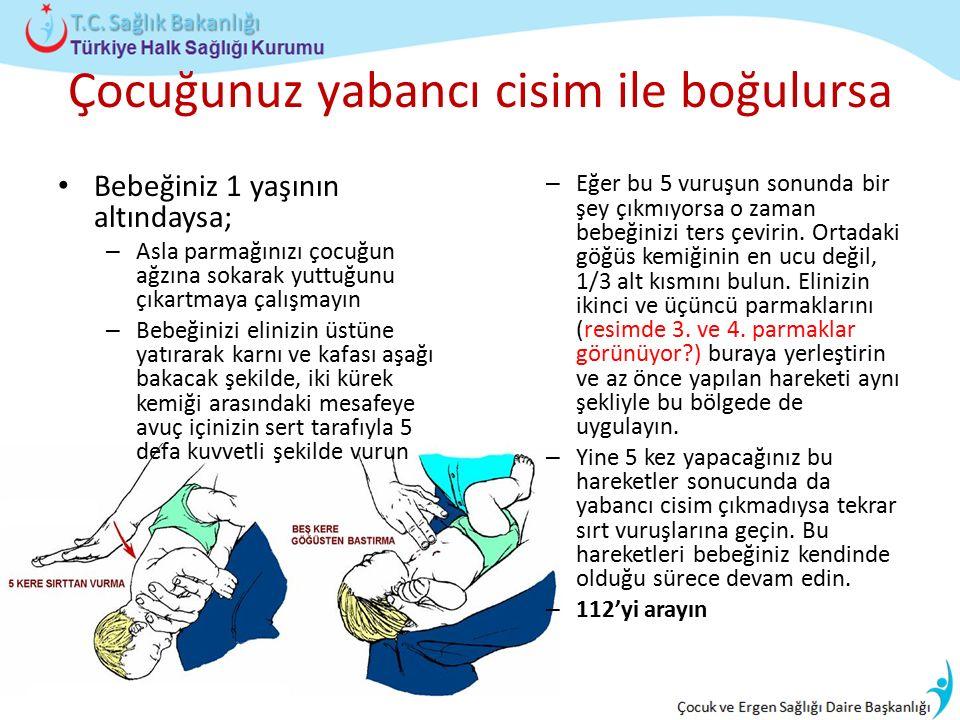 Çocuğunuz yabancı cisim ile boğulursa Bebeğiniz 1 yaşının altındaysa; – Asla parmağınızı çocuğun ağzına sokarak yuttuğunu çıkartmaya çalışmayın – Bebe