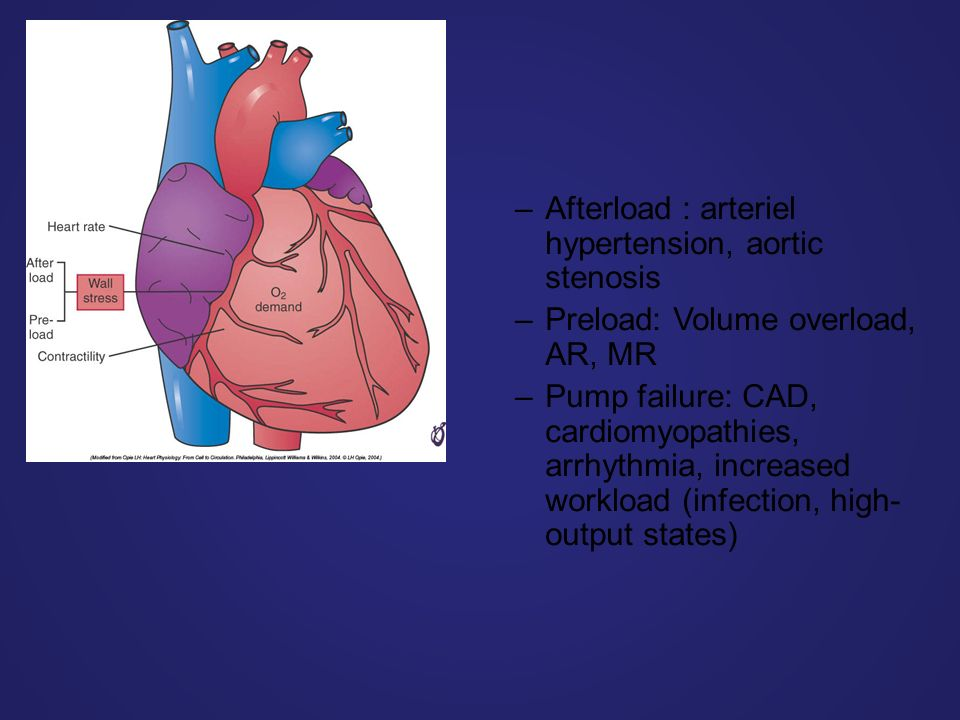 –Afterload : arteriel hypertension, aortic stenosis –Preload: Volume overload, AR, MR –Pump failure: CAD, cardiomyopathies, arrhythmia, increased workload (infection, high- output states)