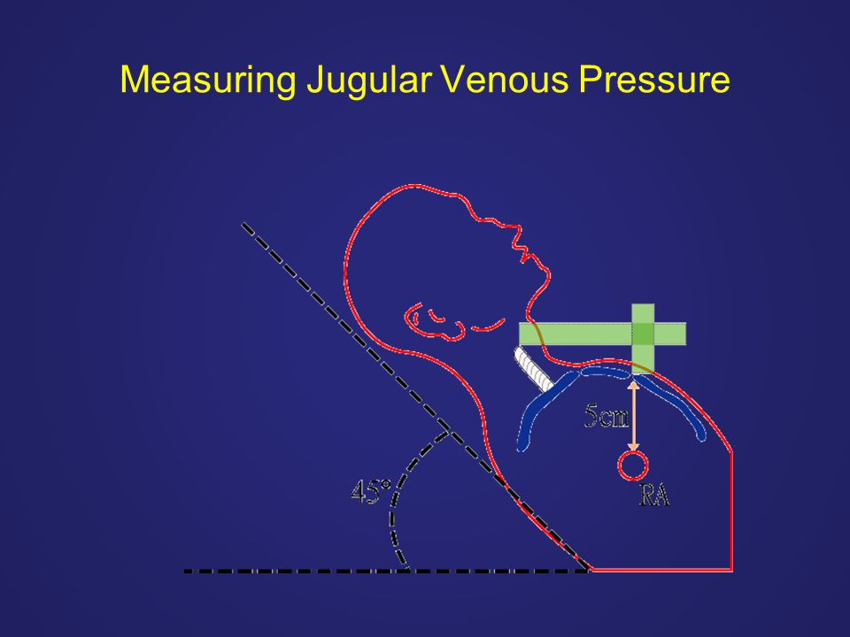 Measuring Jugular Venous Pressure