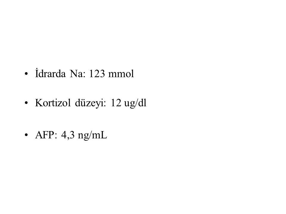 İdrarda Na: 123 mmol Kortizol düzeyi: 12 ug/dl AFP: 4,3 ng/mL