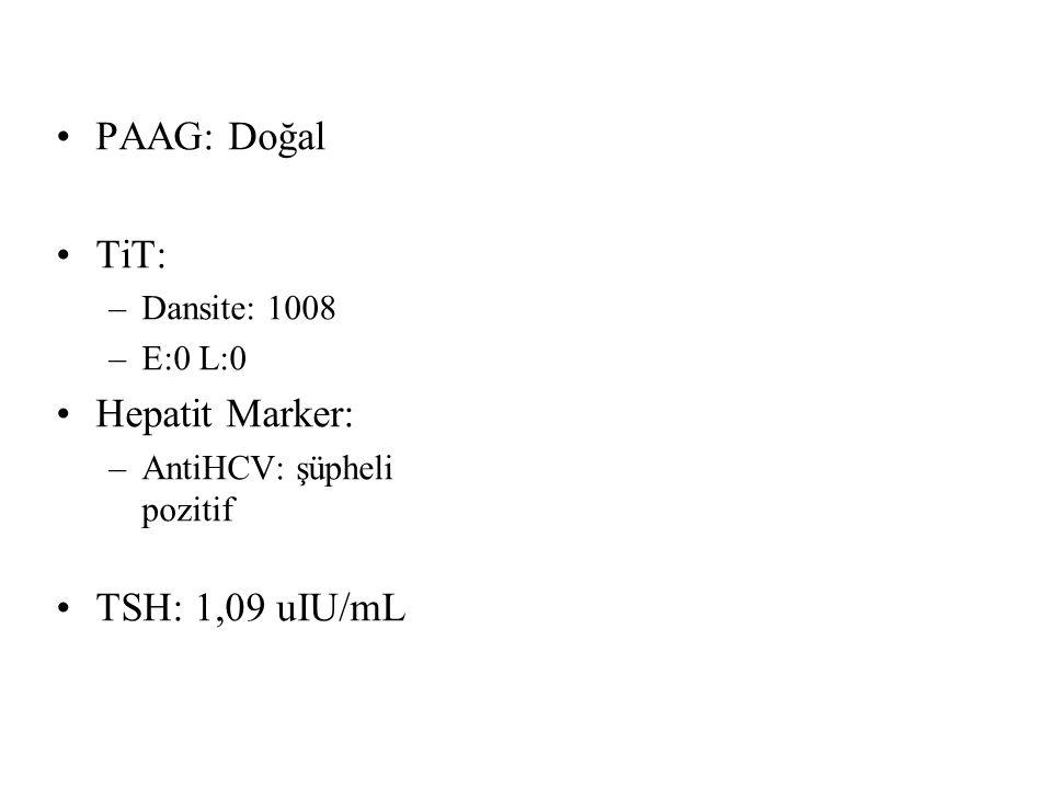 PAAG: Doğal TiT: –Dansite: 1008 –E:0 L:0 Hepatit Marker: –AntiHCV: şüpheli pozitif TSH: 1,09 uIU/mL