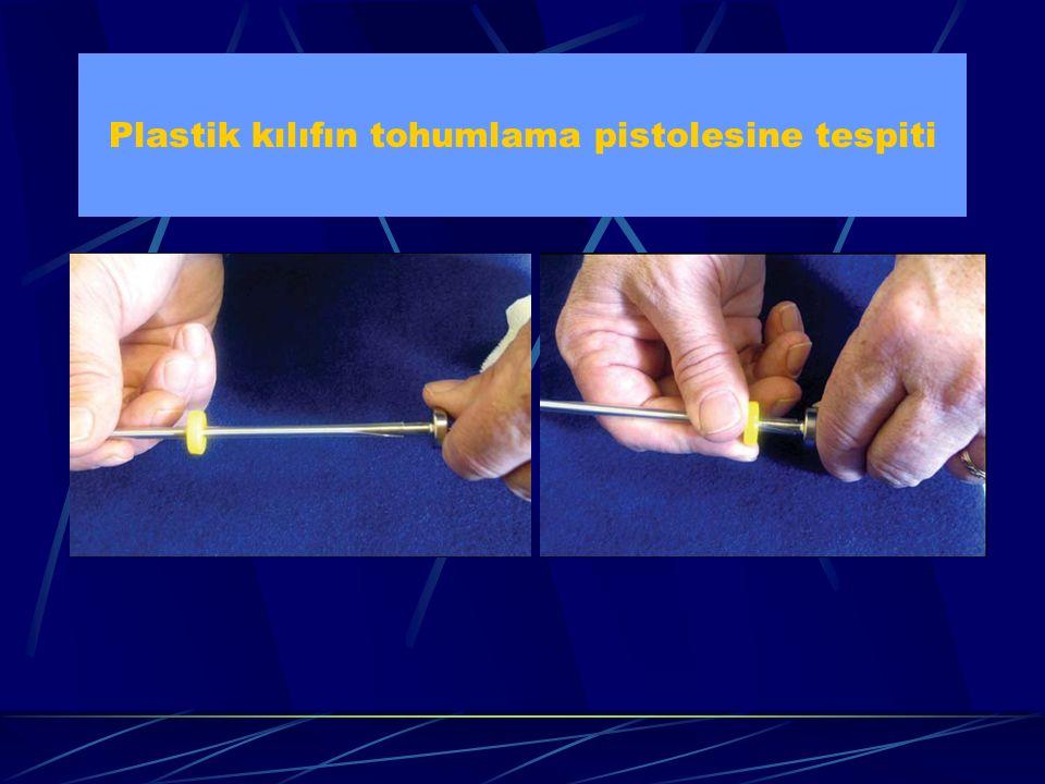 Plastik kılıfın tohumlama pistolesine tespiti