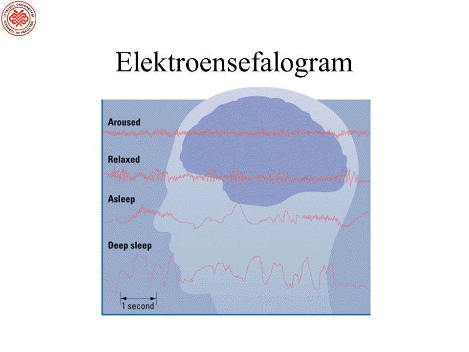 Elektroensefalografi (EEG) EEG'de, birçok elektrod kafa derisi üzerine yerleştirilir ve bunlar nöronların toplam aktivitesinin zaman içindeki değişimlerini izler.
